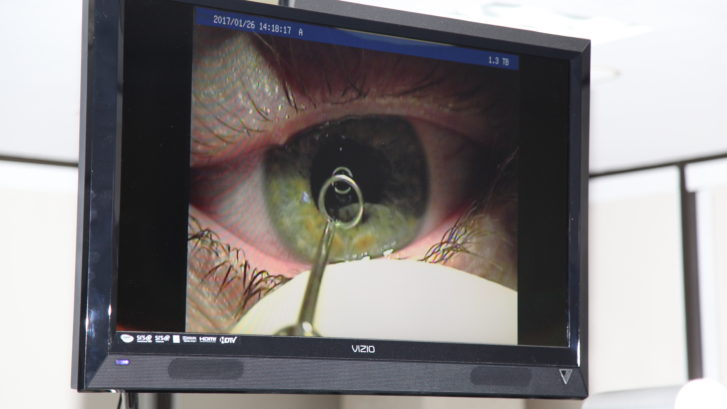 Advanced Laser Vision and Surgical Institute utilizes iLASIK Technology