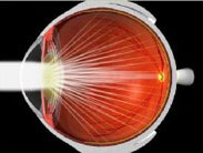 Eye with Cataract in Lens