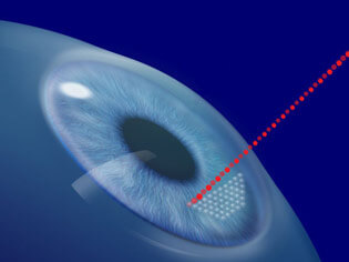 LASIK surgery utilizes the IntraLase Laser which creates the LASIK corneal flap by using a blade-free computerized laser technique